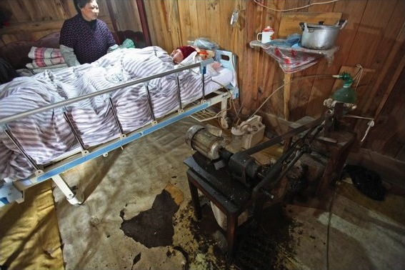 Китаец 5 лет дышал с помощью самодельного аппарата