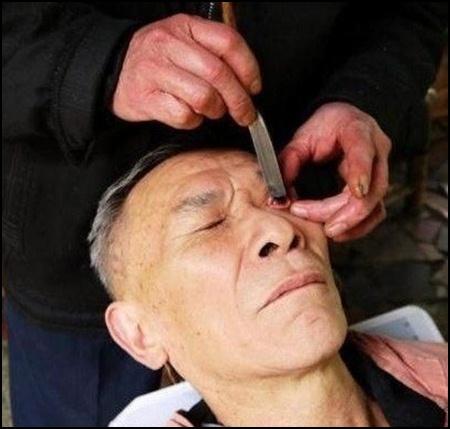 """Древняя китайская процедура """"скобление глаз"""" исчезает из Чэнду"""