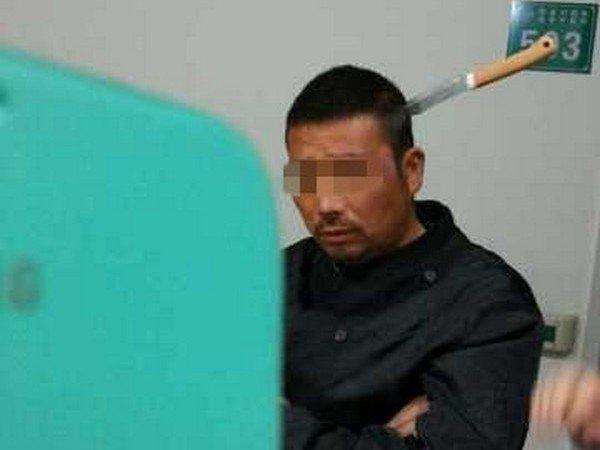 Китаец пришел в больницу с ножом в голове